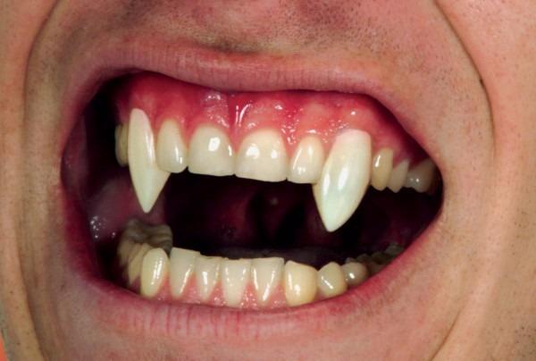 Realistic Custom Fangs Box Vampire Fake Teeth Costume Accessory